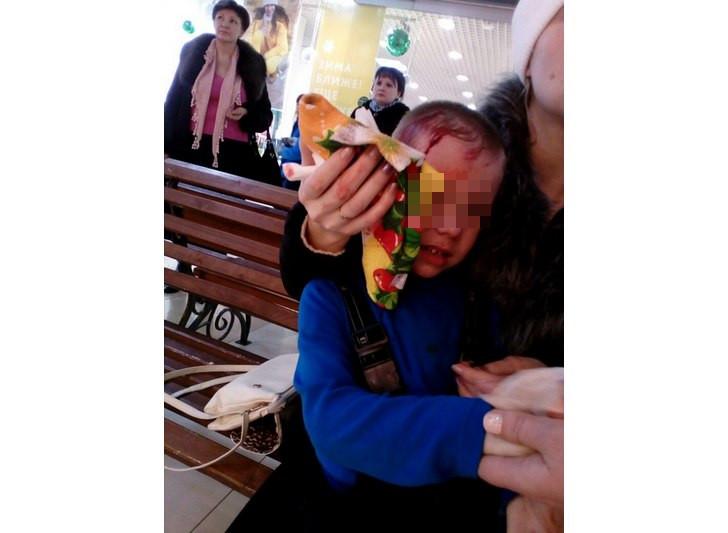 В Башкирии от падения витринного стекла пострадал ребенокВ Башкирии от падения витринного стекла пострадал ребенок